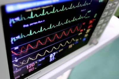 Американцы изобрели суперкомпьютер, способный предсказывать дату смерти с вероятностью 96%