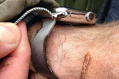 Датчанин получил страшные ожоги от использования Apple Watch