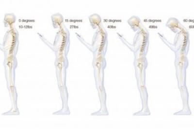 Набор сообщений на смартфоне может быть вредным для позвоночника