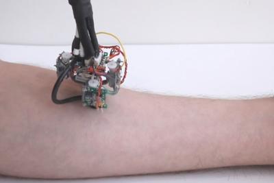 В MIT создали передвигающегося по человеческому телу робота-диагноста